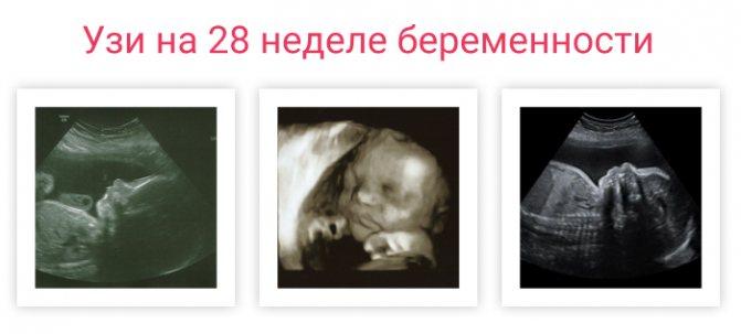 Беременность на 28 неделе