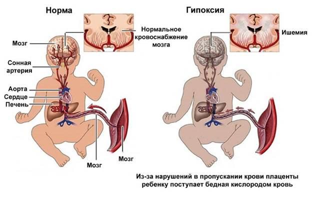 Бронхиальная астма у беременных